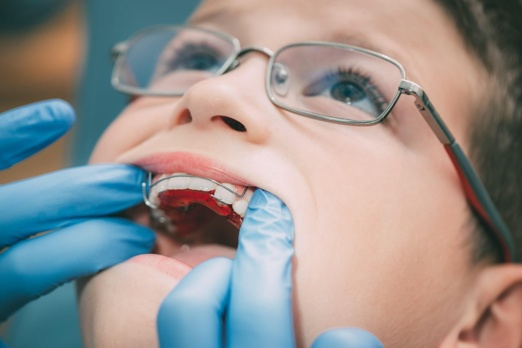The Differences Between Orthotropics and Orthodontics